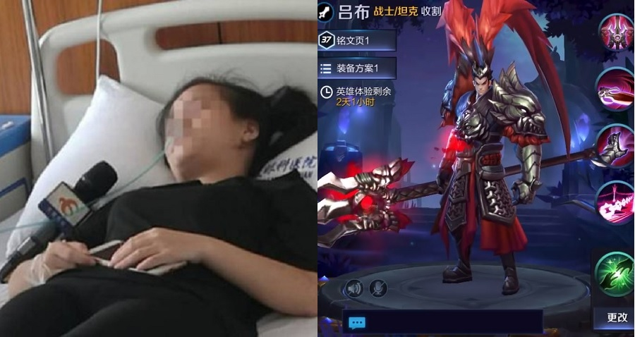 Woman In China Goes Blind One Eye After Playing Mobile Games For Entire Day
