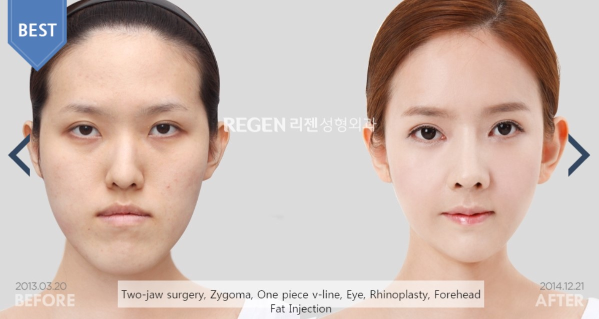 Plastic Surgery Clinics in Korea: Where to Go and Whom to Trust