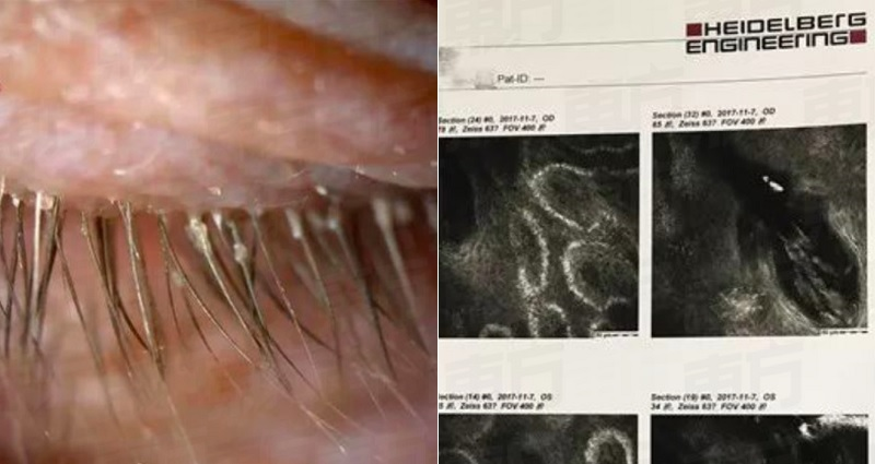 Chinese Womans Itchy Eyes Turns Out To Be 100 Parasites Living In