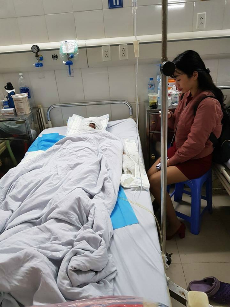 vietnamese woman in a coma after being burned