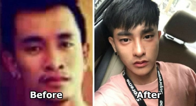 Thai Man Had Over 30 Plastic Surgeries and Looks Completely
