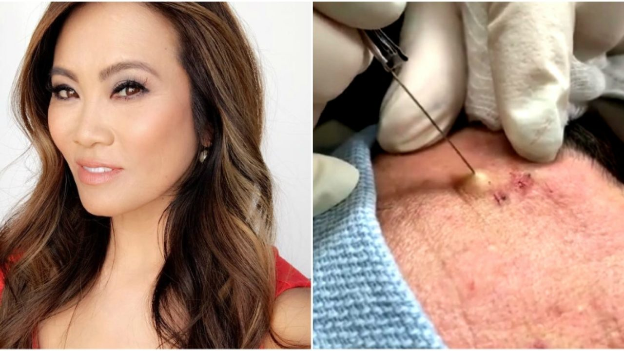 Dr  Pimple Popper is Getting Her Own Reality Series on TLC