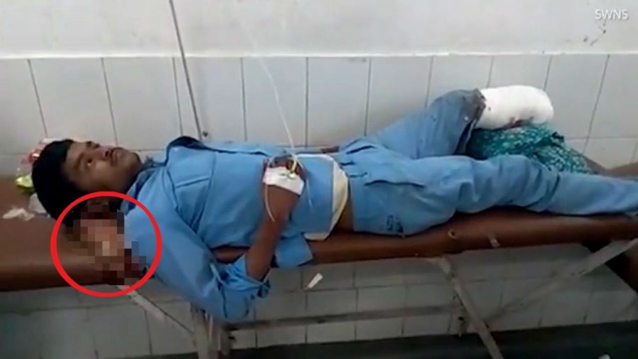 Car Accident Victim Uses Own Amputated Foot As Pillow When Hospital