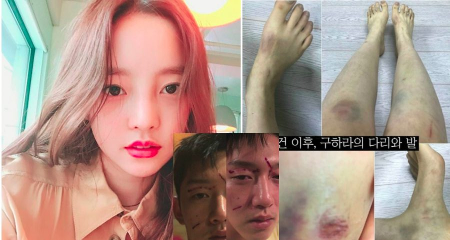 K-Pop Idols Sex Tape Gets 200,000 Searches In Korea After Ex-Boyfriend Abuse Scandal-1714
