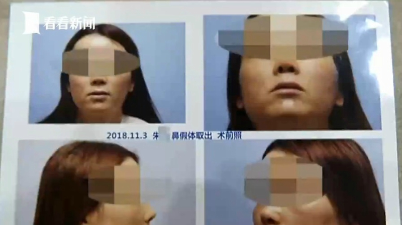 A woman in southeastern China allegedly sneezed out some cotton left over from a nose job that she had undergone half a year ago.
