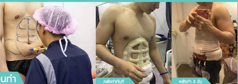 Thailand has finally brought us into the future by making it possible to achieve six-pack abs without the heavy gym workouts and strict diets.