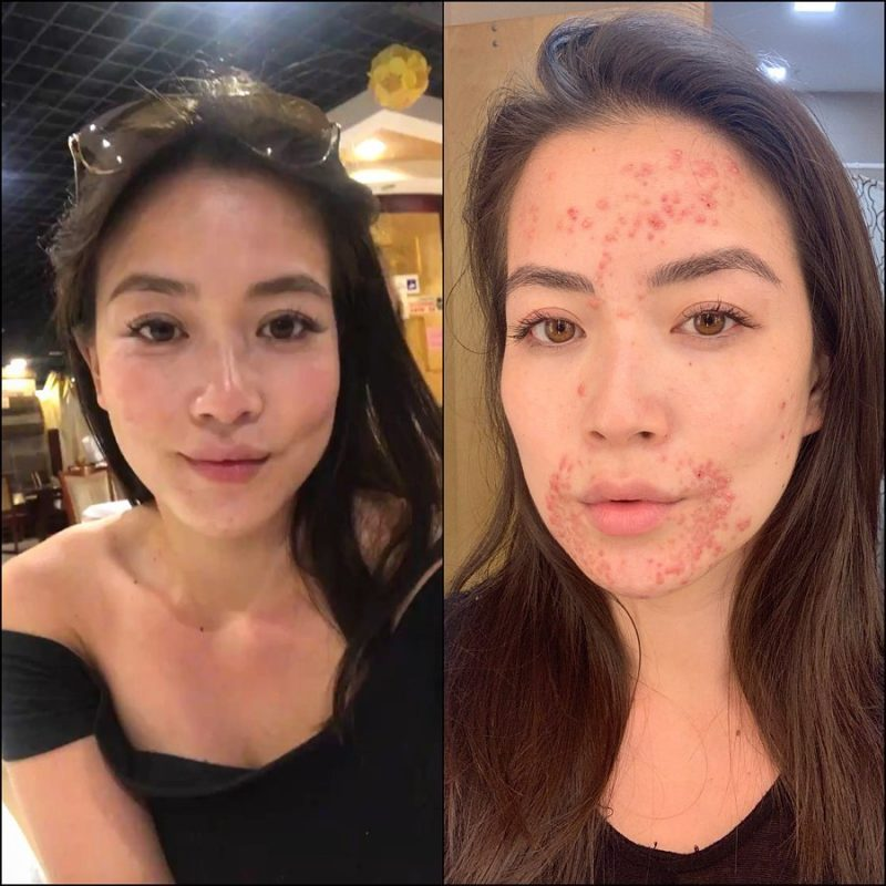 A local CBS News anchor stepped out of the shadows to reveal a skin condition that has covered her face for months, relieving herself of the emotional exhaustion that came with hiding it.
